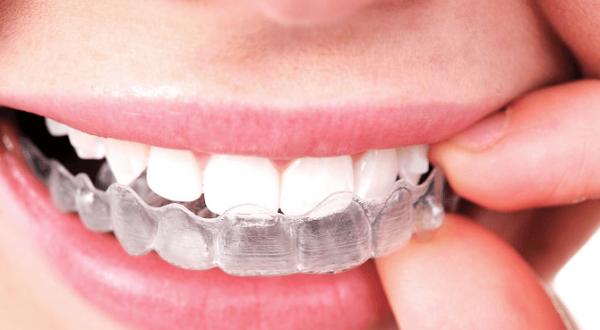 Cosmetic Dentist Parramatta