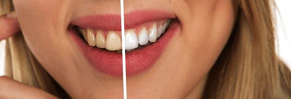 teeth whitening parramatta - zoom teeth whitening