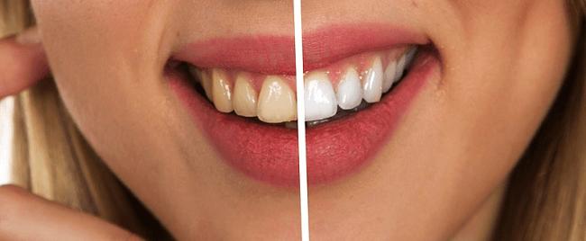 Dental Implants Parramatta