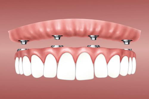 Dental Implants Parramatta NSW